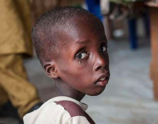 Hunger in NIgeria